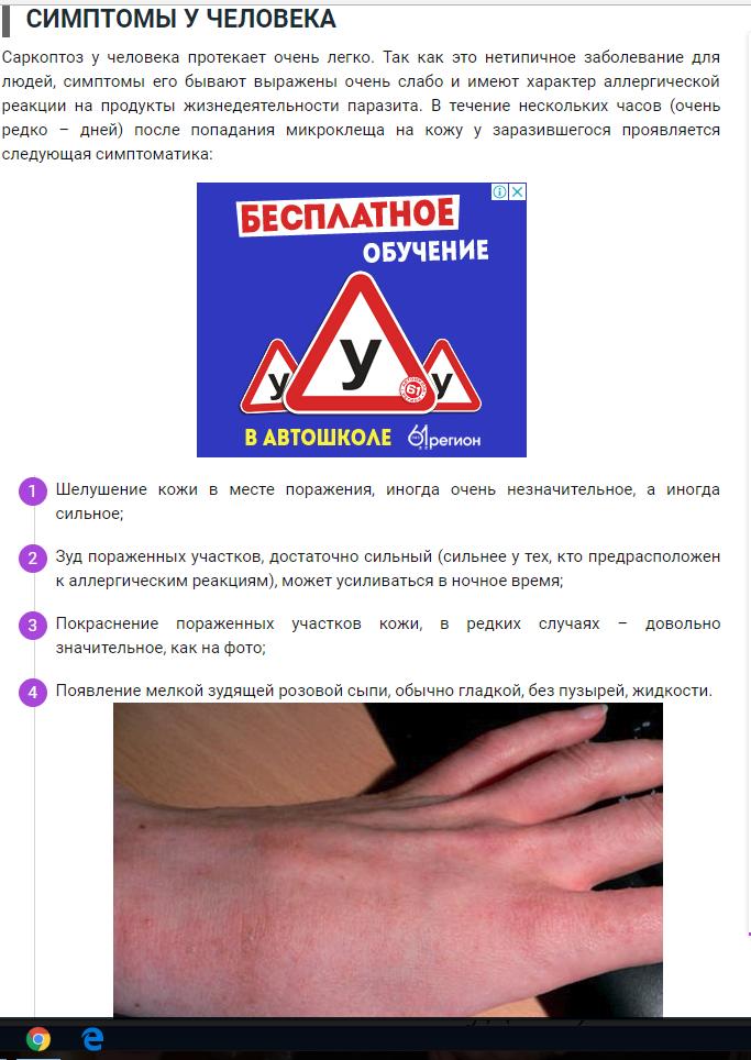 Саркоптоз