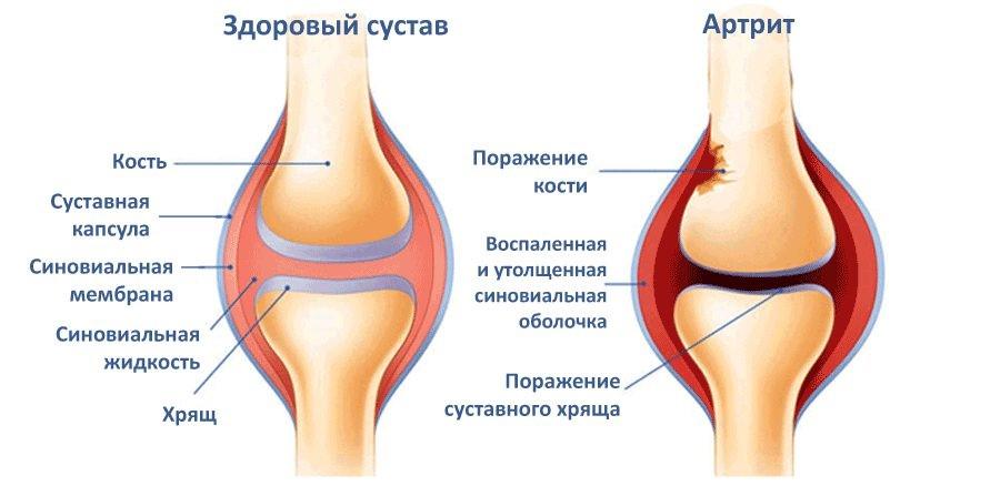 Сравнение суставов