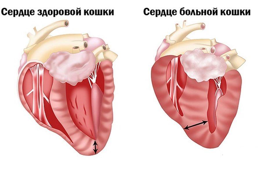 Сравнение здорового и больного сердца
