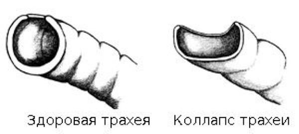 Трахея