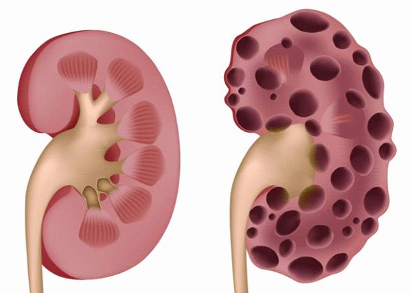 При почечной недостаточности значительная часть органа поражается