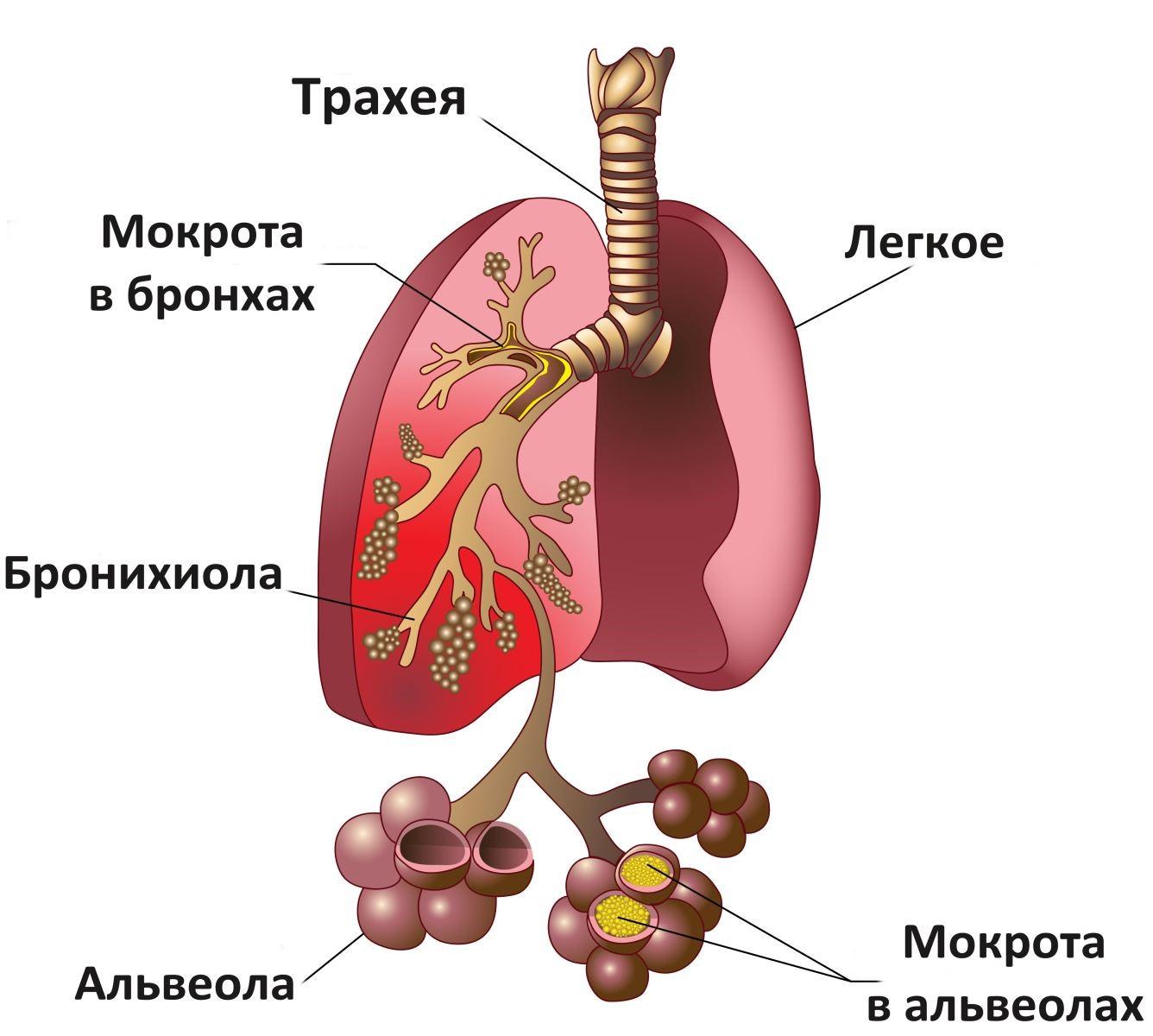 Схема пневмонии