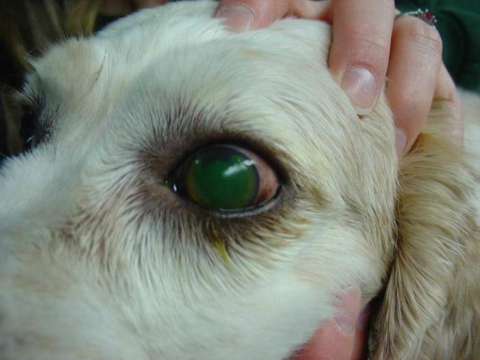 Синдром голубого глаза