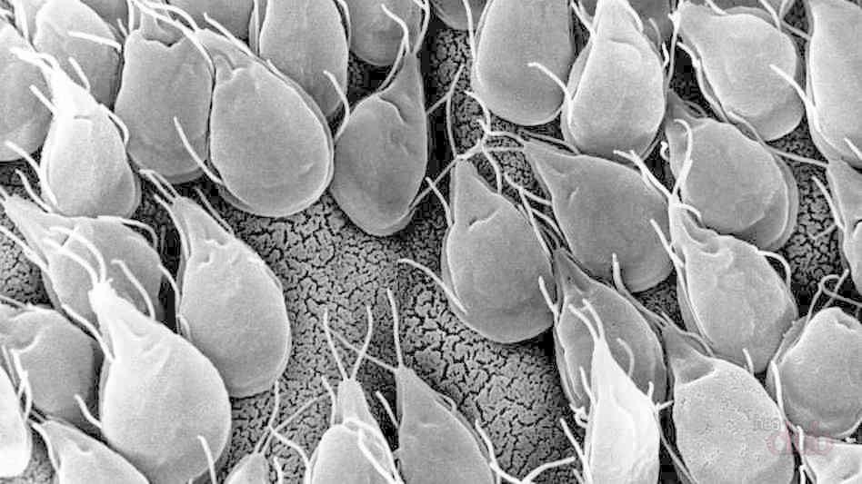 Лямблии, прикрепившиеся к стенке кишечника