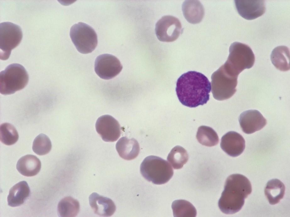 Мазок крови в норме. Лейкоцит окрашен фиолетовым цветом