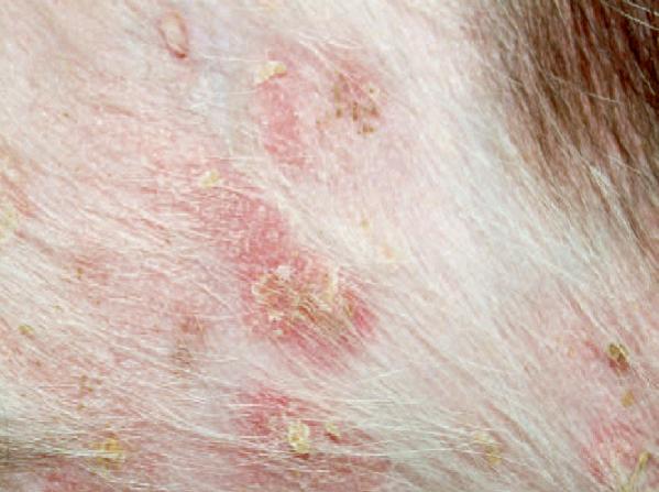 При микоплазмозе развивается пиодермия