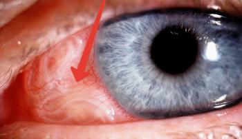 Глаз больного человека